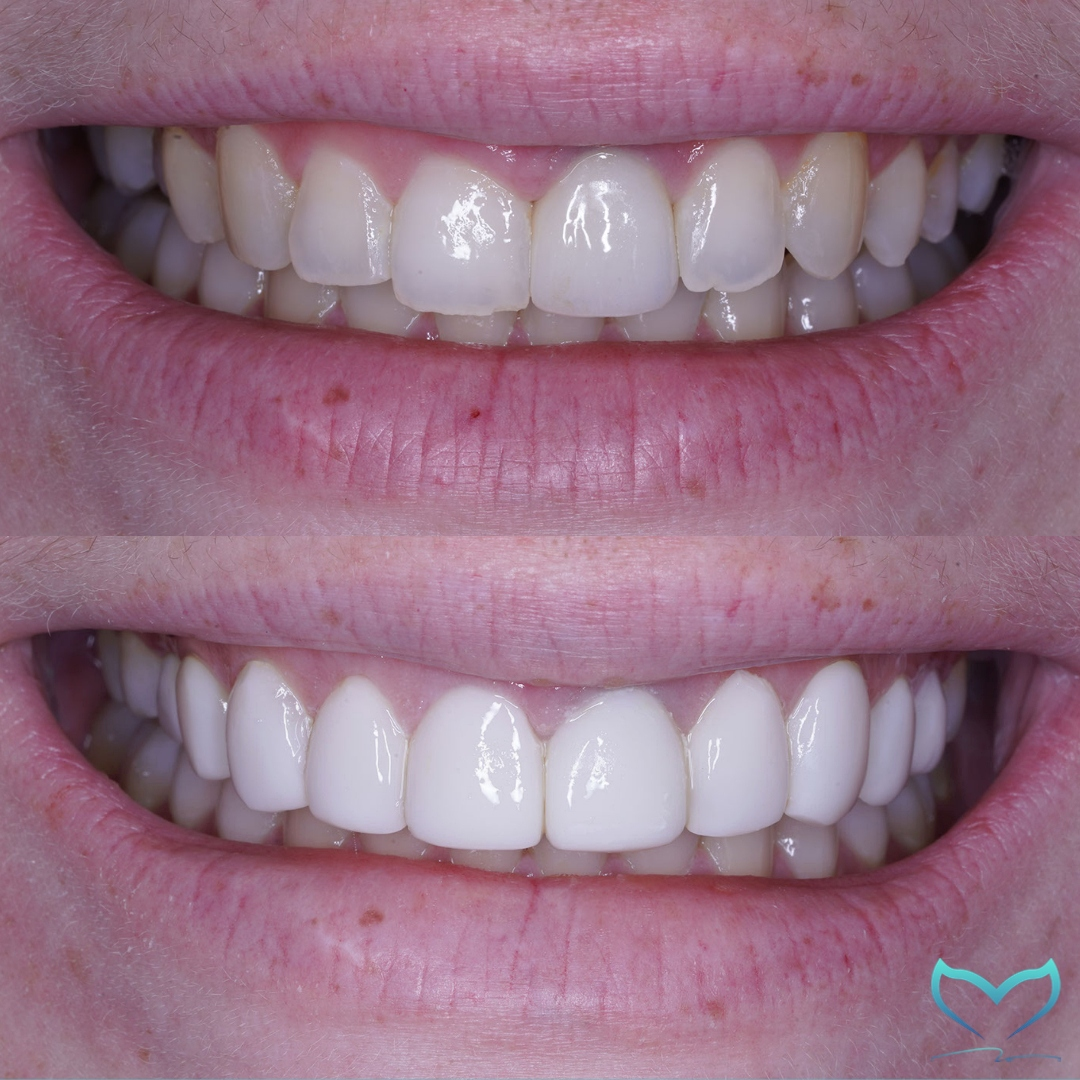 Composite Veneers Blog Image 2