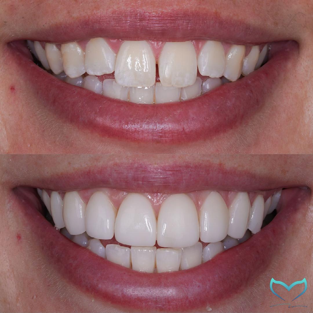 Holly Dawson smile 3.4